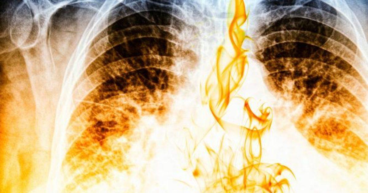 Τσιγάρο-καρκίνος: Σοκαριστικό βίντεο δείχνει πώς γίνονται οι πνεύμονες από το κάπνισμα [video]