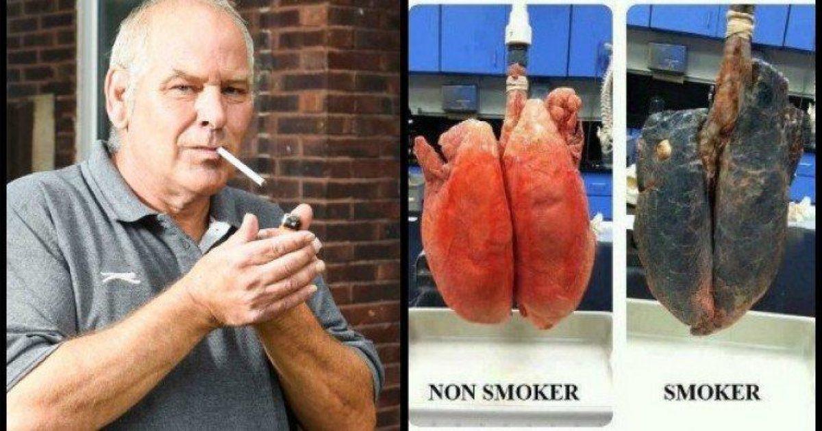 Πως να καθαρίσεις τους πνεύμονές σου εαν είσαι καπνιστής!