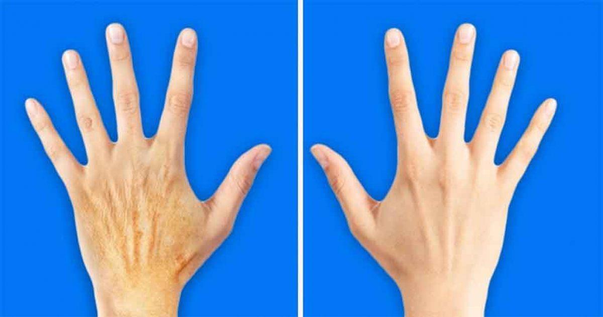 5 μυστικά για να κάνετε τα χέρια σας 10 χρόνια νεώτερα
