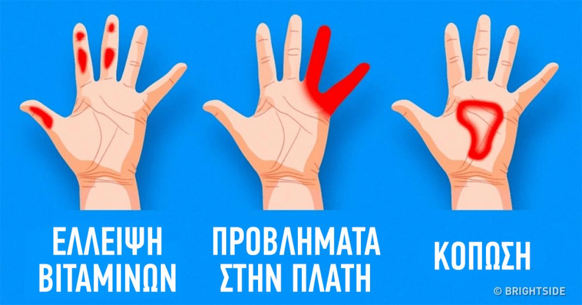 7 σημαντικά πράγματα που μαρτυρούν τα χέρια για την υγεία μας
