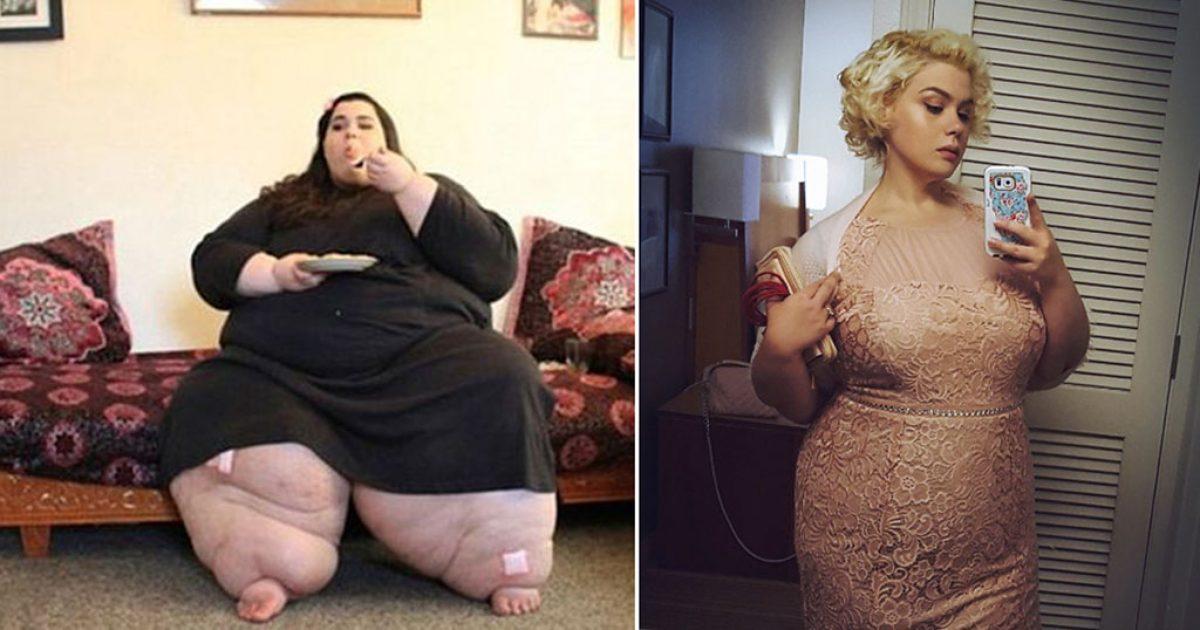 Η ιστορία της γυναίκας που ήταν 270 κιλά και έχασε 180 θα σας εμπνεύσει