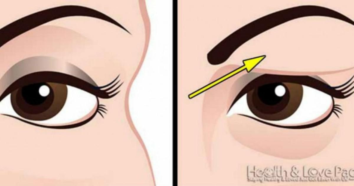 Πώς να διορθώσετε τα πεσμένα βλέφαρα εντελώς φυσικά.