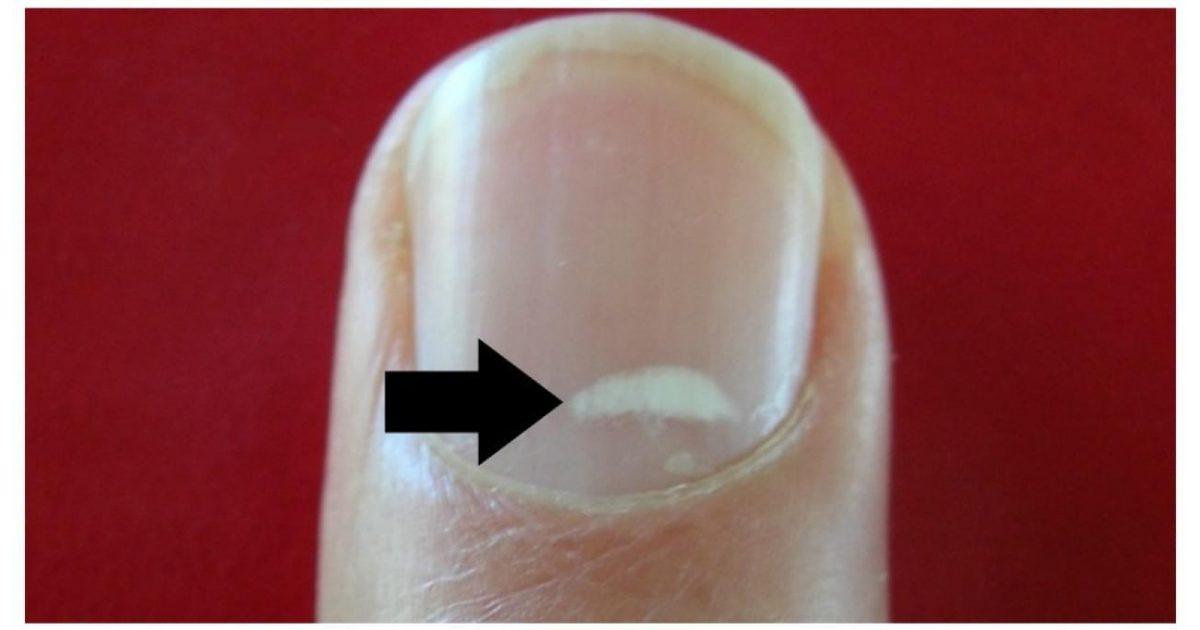 Τελικά, τι είναι αυτά τα λευκά σημάδια στα νύχια σου;